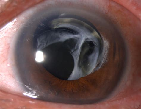 Dislocated Posterior Chamber Intraocular Lens (PCIOL) in